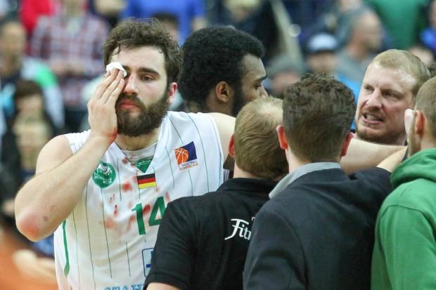 Marian Schick (#14, Leipzig) trug eine blutende Wunde am rechten Auge davon. Foto: Jan Kaefer