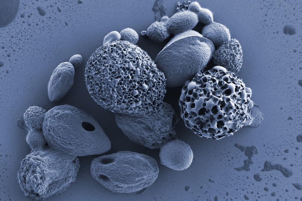 So sehen Materialoberflächen unterm Elektronenmikroskop aus: Cryogel-Partikel. Foto: IOM