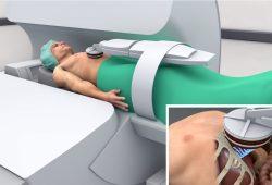 Schematische Darstellung zur Anwendung des fokussierten Ultraschalls im MRT. Foto: Fraunhofer MEVIS