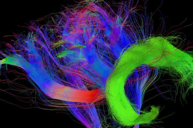 Faserverbindungen im Gehirn eines vierjährigen Kindes, bei dem der Fasciculus Arcuatus (grün) bereits stärker ausgebildet ist – der entscheidende Entwicklungsschritt um uns in andere hineinversetzen zu können. Foto: MPI CBS