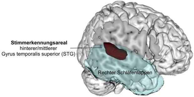 Blick auf die rechte Seite des Gehirns und seine Areal zur Stimmerkennung (mit Blickrichtung nach rechts): Den sogenannten hinteren Gyrus temporalis superior, kurz STG, einem Teil des rechten Schläfenlappens. Grafik: MPI CBS