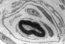 Elektronenmikroskopische Aufnahme eines an CMT1A erkrankten Nervs im Querschnitt (Vergrößerung 30.000 fach). An die innere mit Myelin (schwarzer Ring) ummantelte Nervenfaser lagern sich mehrere Schwann-Zellen ähnlich einer Zwiebelschale kreisförmig an Foto: Dr. Ruth Stassart