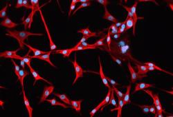 Zellkultur eines Glioblastoms: Blau sind die Zellkerne, rot die Zellkörper zu sehen. Sie wurden mit dem Protein Vimentin eingefärbt. Sehr starke Färbung bedeutet für Patienten nach einer aktuellen Studie eine sehr schlechte Prognose Foto: Klinik und Poliklinik für Neurochirurgie, Universitätsklinikum Leipzig