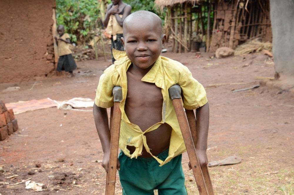 Denis hatte O-Bein. Nach zwei Operationen sind seine Beine nun gerade und er kann bald wieder laufen. © CBM