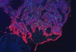 Fluoreszenzbild einer Tumorfront des Gebärmutterhals. Zellkerne wurden blau und sich teilende Zellen grün markiert. Tumorzellen, rot markiert, befallen und verdrängen gesundes Gewebe. Foto: Universitätsklinikum Leipzig