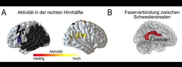 Werden die Areale zur Lautverarbeitung in der linken Hirnhälfte gestört (dunkelgrau und blau-grau), erhöht sich die Aktivität in den entsprechenden Pendants auf der rechten Seite (A, gelb). Je stärker dabei die Faserverbindung zwischen den Schwesterarealen (B, rot: Fasertrakt), desto weniger sind die sprachlichen Fähigkeiten durch die Störung beeinträchtigt. Grafik: MPI CBS