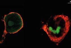 Aufnahmen von Makrophagen (rot), in denen der Wirkstoff (grün) verteilt ist. Links ist der Wirkstoff Heparin zu sehen, rechts Hyaluronsäure. Foto: Hala Al Khoury