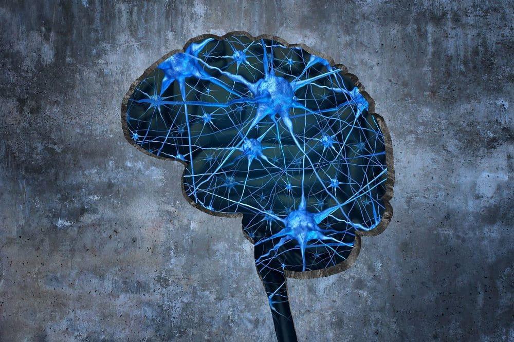 Bei der Parkinsonkrankheit verkümmern Nervenzellen in einem Teil des Gehirns. Foto: Colourbox